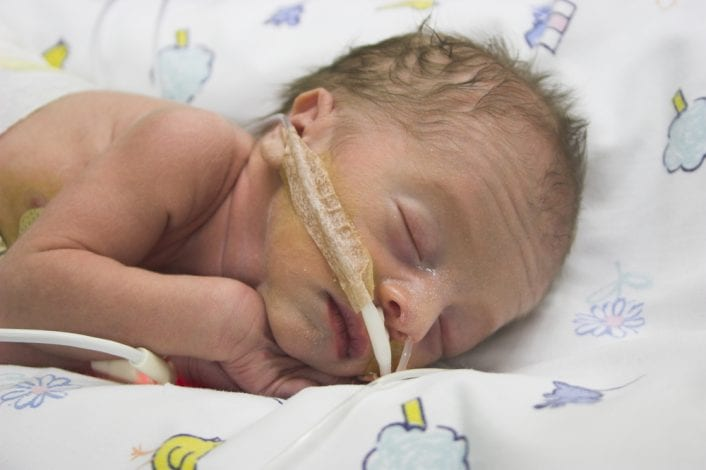 premature baby, parents of preterm baby, early delivery, born prematurely